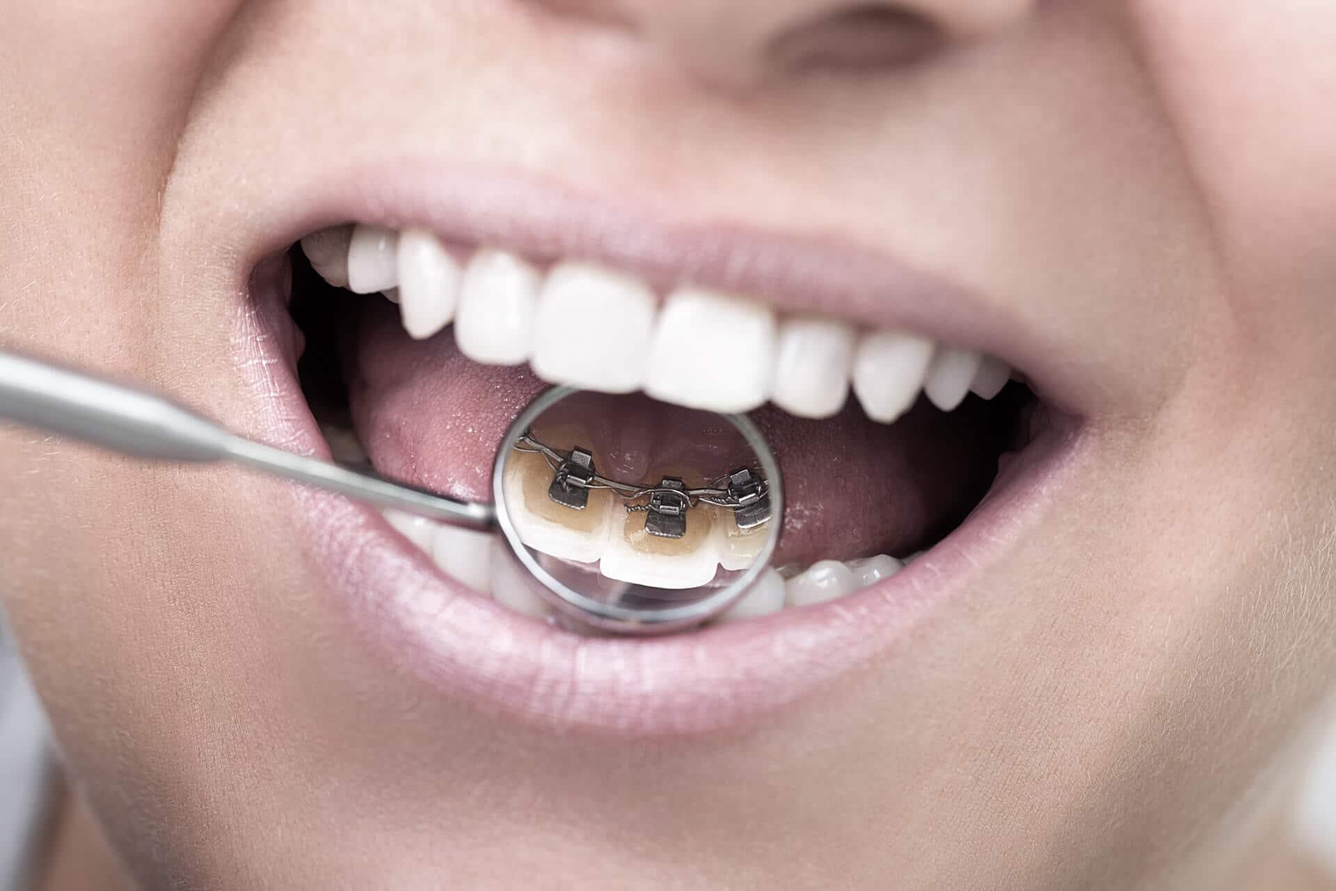 Zahne begradigen bild 2