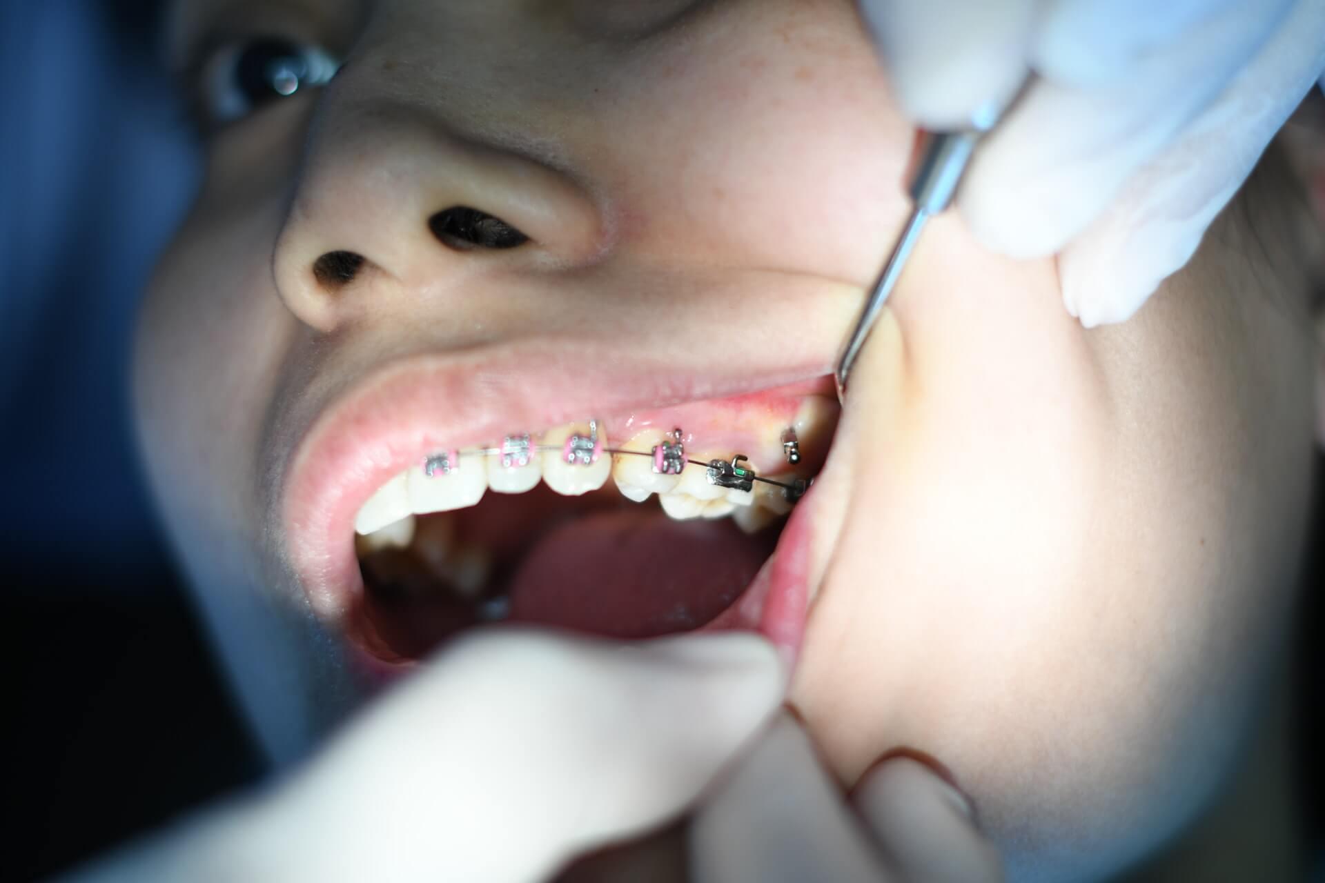 Zahnspange Schmerzen bild 1
